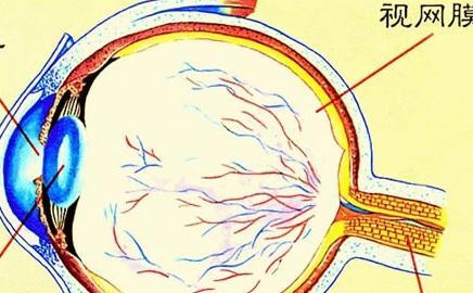 继发性视网膜脱离