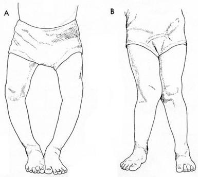 左腿足骨结构图