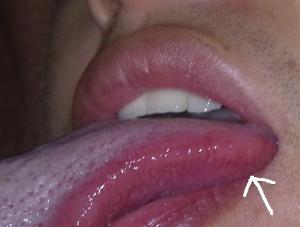 舌头毛状白斑图片_