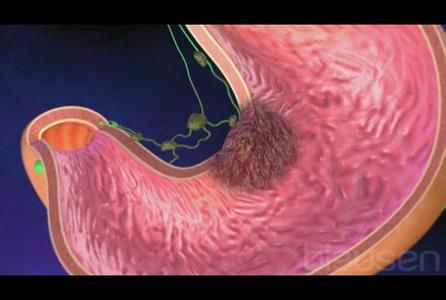 胃腺癌红蓝铅笔手绘图