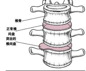 腰椎示意图椎间盘退变脱水,失去正常水压的弹性,从而使脊柱屈伸、