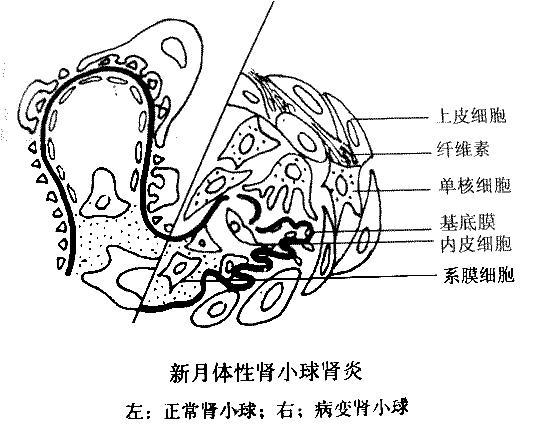 肾小球肾炎