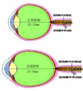 近视眼激光手术