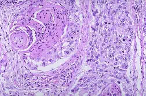 肺细胞手绘图