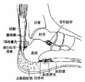 痛也会加重,用手指按压跟腱有压痛.-跟腱炎