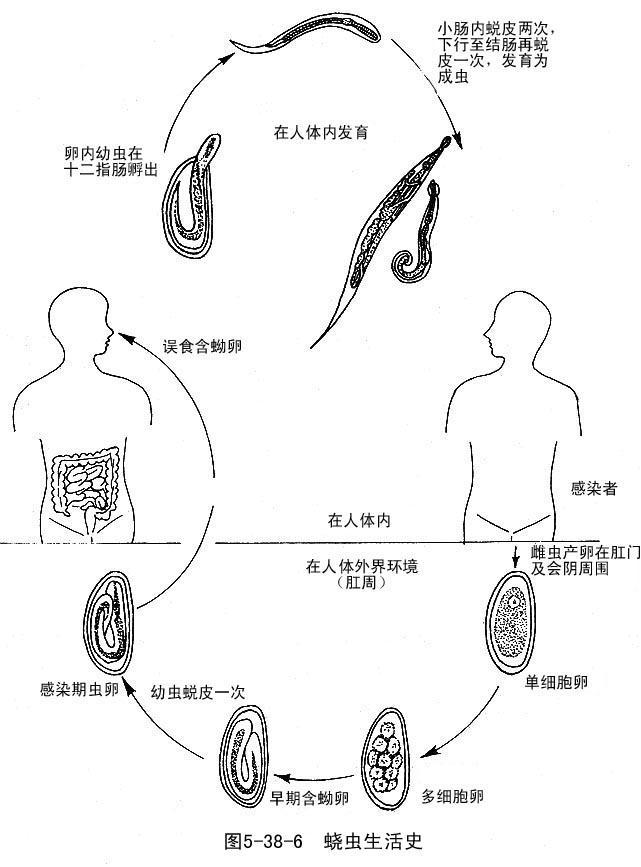 蛲虫卵图片手绘图