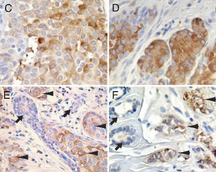 免疫组化染色(ihc)