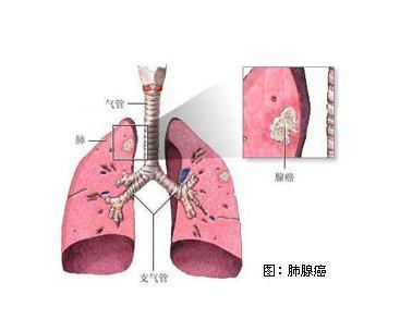 腺癌红蓝铅笔手绘图