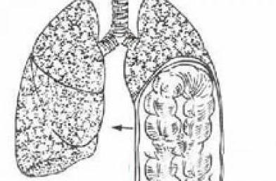 肺小脓肿手绘图