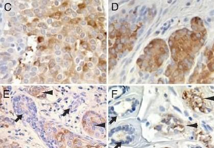 从实验结果而言,免疫组化技术服务主要涉及抗体实验