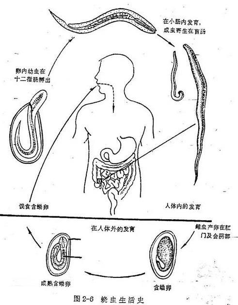蛲虫卵手绘图标注