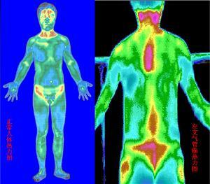 亚洲人体热�_正常人体热成像图和左支气管癌患者热力图