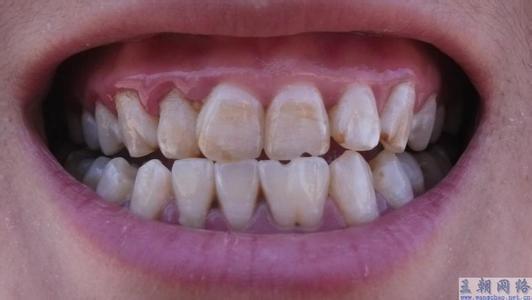 儿童牙齿色素沉着