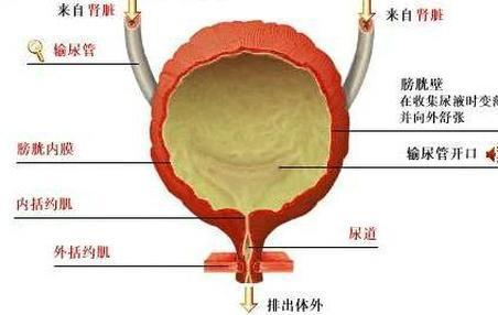 急性膀胱炎