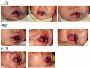 成人口腔内血管瘤_口腔内血管瘤图片
