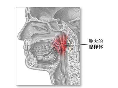 腺+��\y�#�.b:/��.#yc�_急性腺样体炎