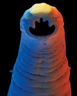 钩虫卵手绘图标注