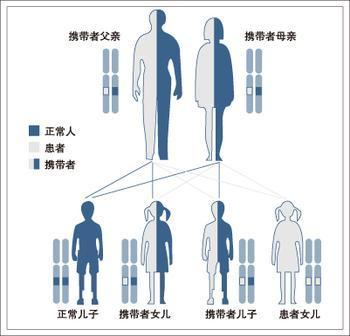 脆性x染色体综合征