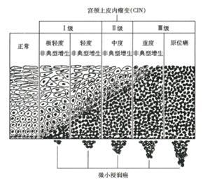鳞状上皮细胞cin1_①轻度不典型增生cin1上皮细胞排列稍紊乱