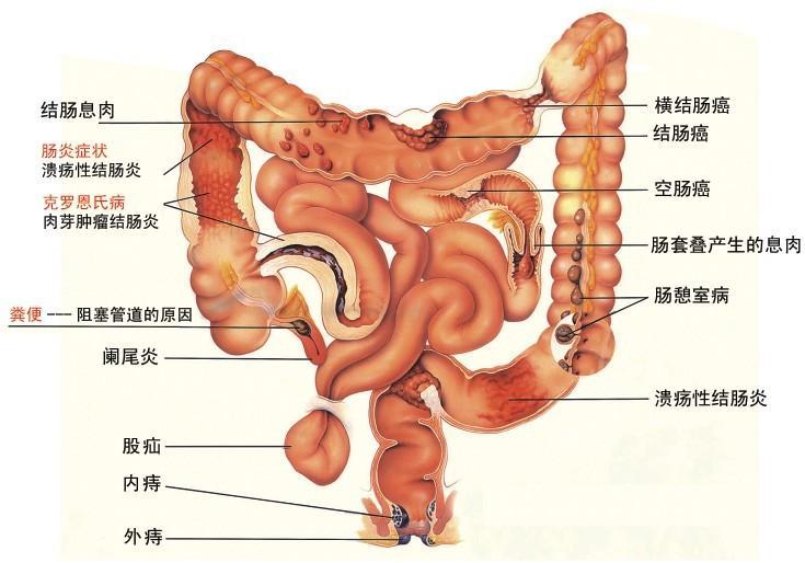 消化系统疾病主要包括食管