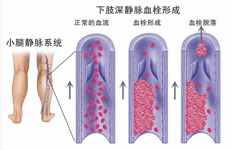 血栓机化红蓝手绘图