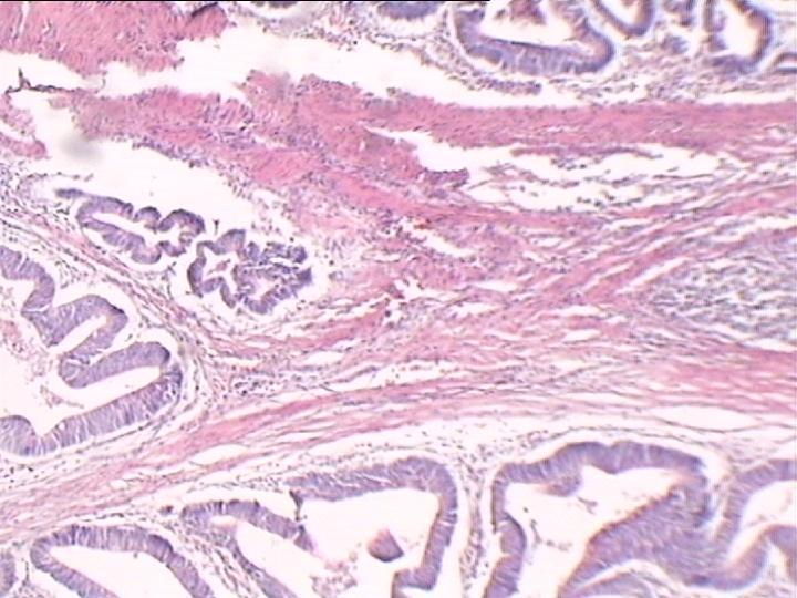 腺癌红蓝手绘图