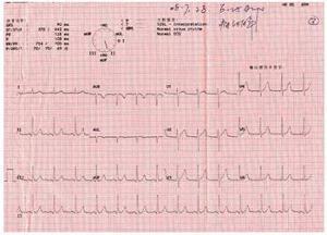 心电图特点 (1)发作时心电图呈st段暂时性提高,伴对应导联st段压低,发