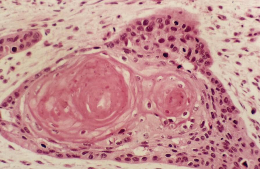 红蓝铅笔手绘大肠杆菌