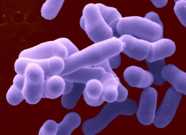 细菌一般是单细胞,细胞结构简单,缺乏细胞核,细胞骨架以及膜状胞器