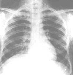 血吸虫病囹�a_肺血吸虫病