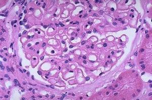 轻度系膜增生性肾炎_隐匿性肾炎 - 搜狗百科