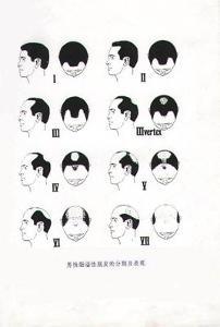 油脂性脱发