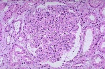轻度系膜增生性肾炎_系膜增生性肾小球肾炎 - 搜狗百科
