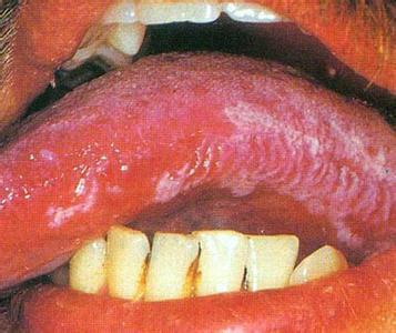 舌头毛状白斑图片_还有舌头上发白好像是毛状白斑