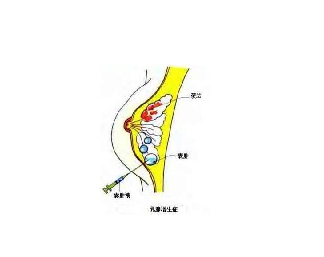乳腺增生结节+ +搜百科