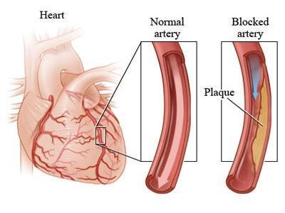 心肌横切结构名称