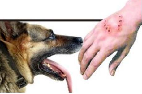 其它疯动物咬伤,且没有采取任何预防措施,结果也只有15%-30%的人发病.