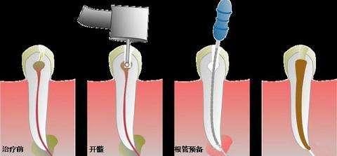 牙齿根管治疗术步骤分解图片