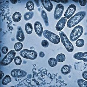 能运动,大多数具有菌毛,能吸附于宿主细胞表面或凝集豚鼠红细胞.