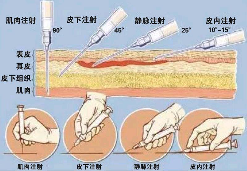 肌肉注射角度_肌肉注射法_打针部位图_5号针头打肌肉针_打针的正确手法图解_看 ...