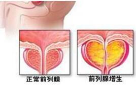 腺+��\y���l9�.����(c9��_前列腺增生