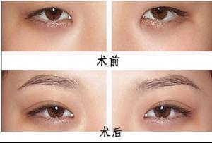 韩式双眼皮对比_韩式割双眼皮 - 搜狗百科