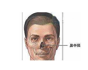鼻中隔弯曲手术_鼻中隔弯曲 - 搜狗百科