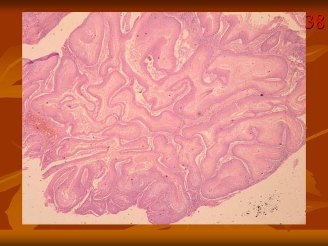 生殖器疣的原因_外阴疣状癌 - 搜狗百科