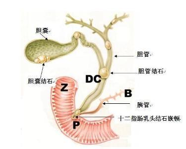 炎 原因 胆管
